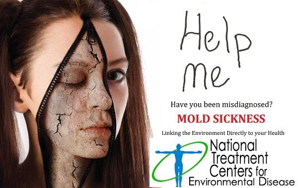 Misdiagnosed Illness of Mold Sickness