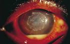 Eye Keratitis