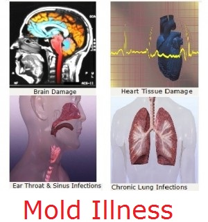mold illness